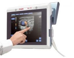 Ультразвуковой сканер MyLabTouch